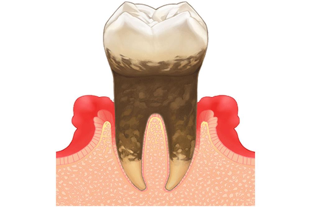極力抜歯を避ける治療法