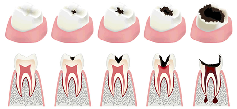 むし歯のレベル