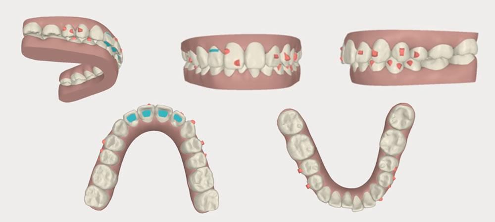 非抜歯矯正治療