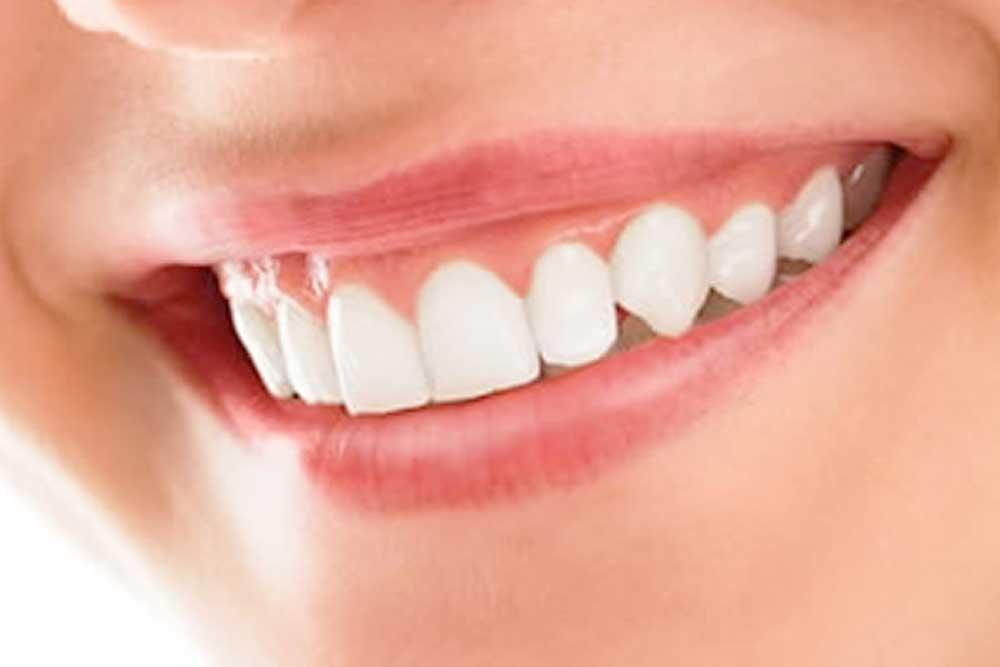 歯茎を健康的なピンク色に